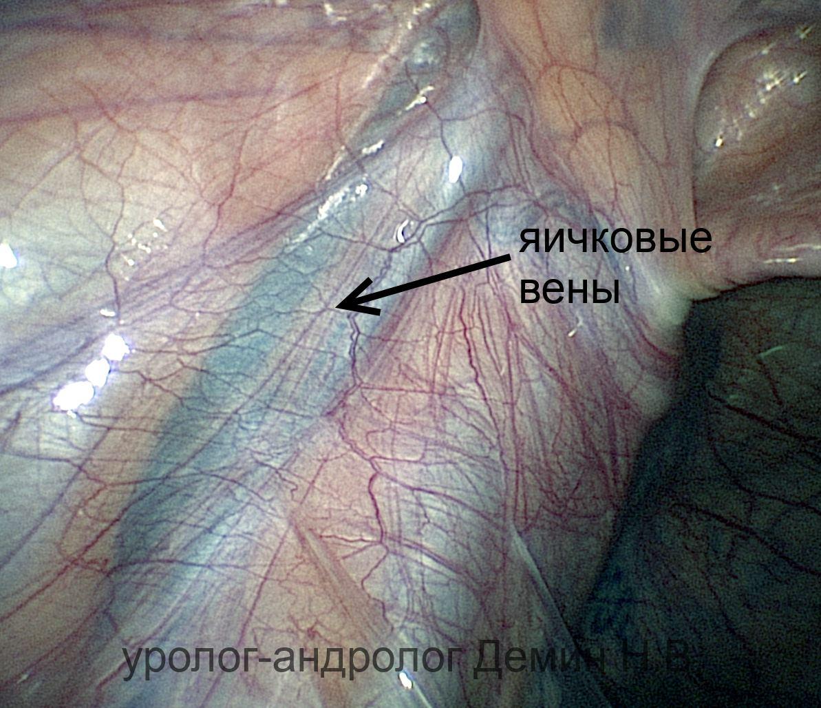 Проктоцеле фото